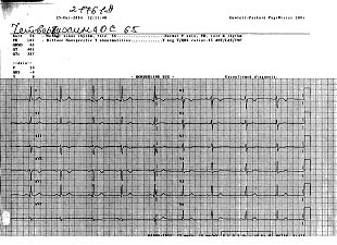Кардиограмма 2, после исцеления