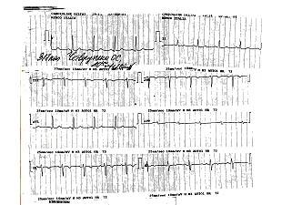 Кардиограмма 1, во время болезни